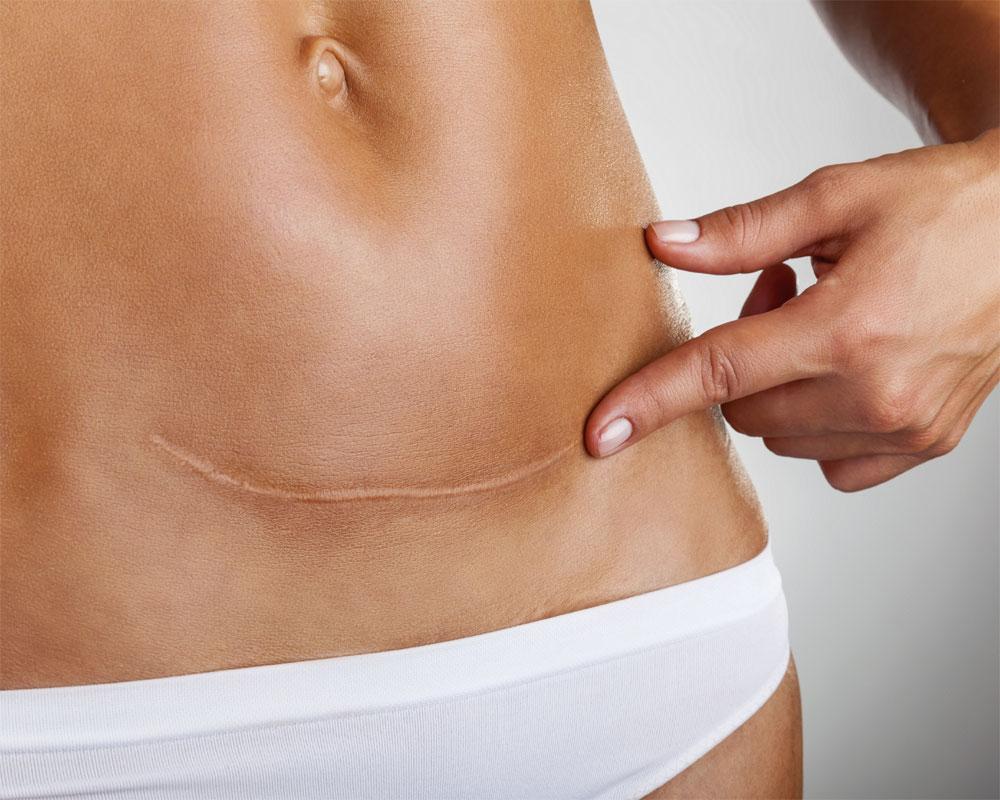 Факты о кесаревом сечении, которые должна знать каждая женщина, выбирающая этот метод родоразрешения!